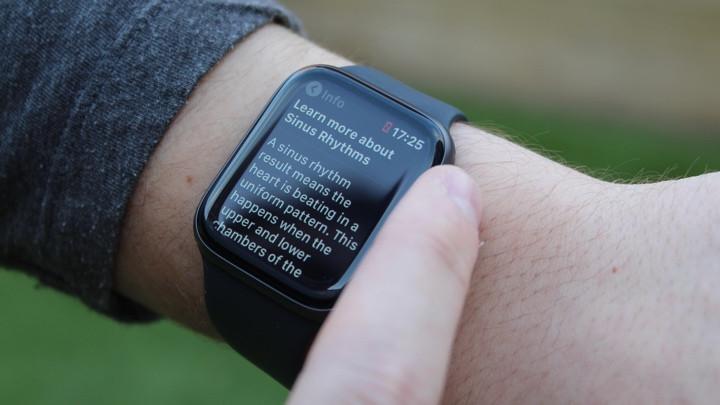 Apple Watch ECG: Guía del usuario del nuevo monitor de fibrilación auricular